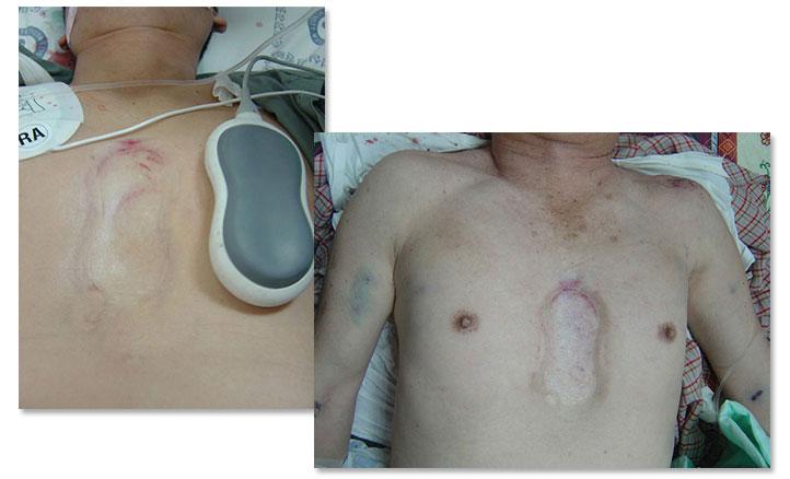 danni-massaggio-cardiaco