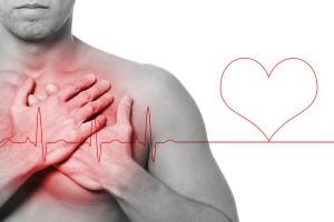 Arresto cardiaco e defibrillazione precoce
